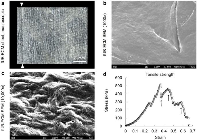 Fetal Extracellular Matrix Nerve Wraps Locally Improve