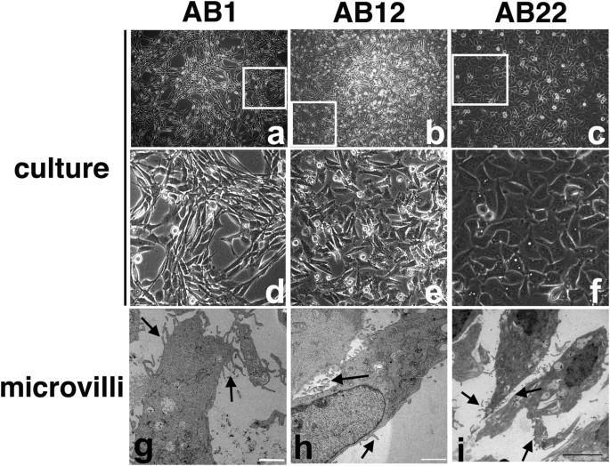 mesothelioma cells