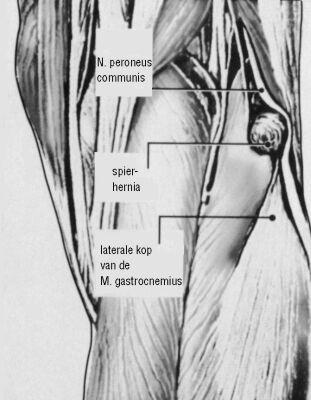 Herniatie van de M. gastrocnemius bij de knie als oorzaak van op ...