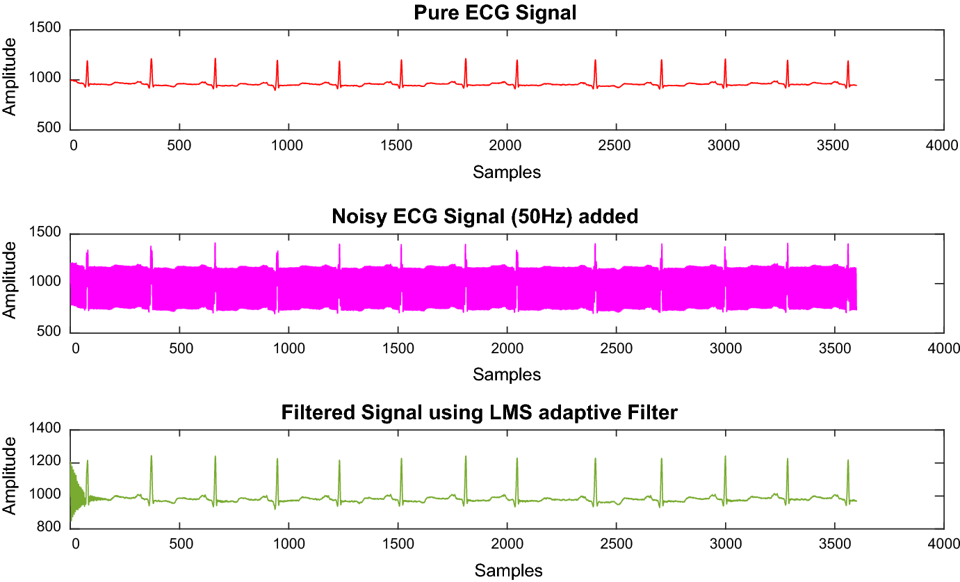 Removing Artifacts from Raw Electrocardiogram Signals Using