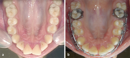 Zygomatic mini-implant for Class II correction in growing patients ...