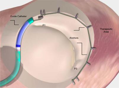 Percutaneous approaches to mitral valve regurgitation   SpringerLink