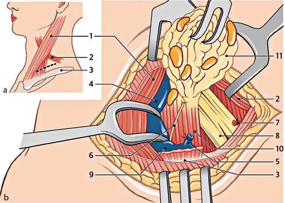 Neck dissection — ein wichtiges Behandlungskonzept | SpringerLink