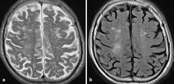White Matter Lesions and Vascular Cognitive Impairment   SpringerLink