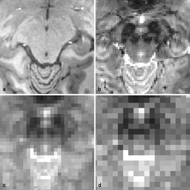 Functional MRI of the Brainstem: Common Problems and their Solutions ...