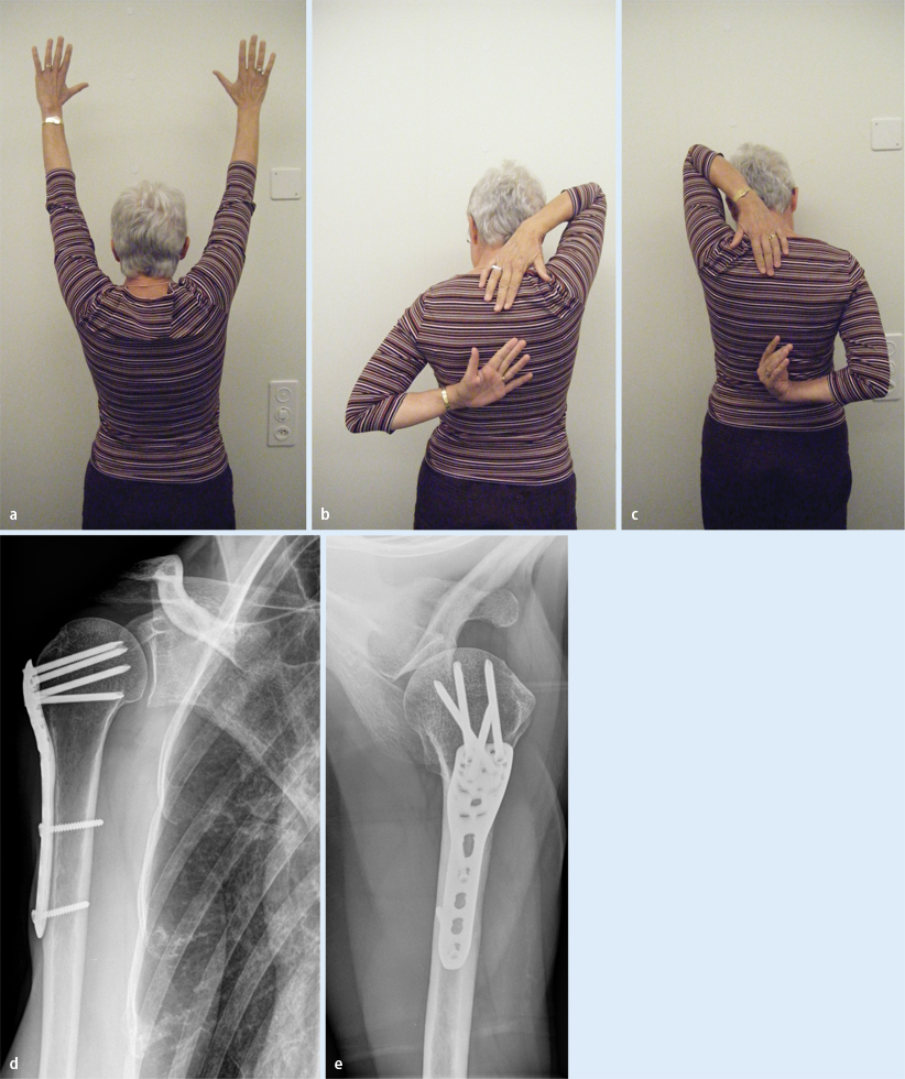 Plate fixation of proximal humerus fractures using the minimally ...