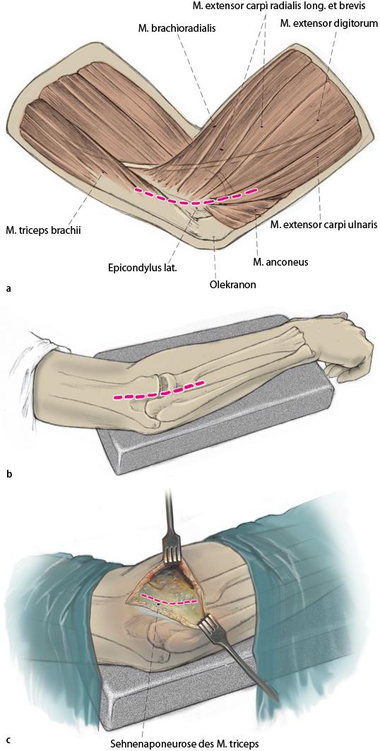 LUCL-Bandplastik mit Trizepssehnentransplantat zur Therapie der ...