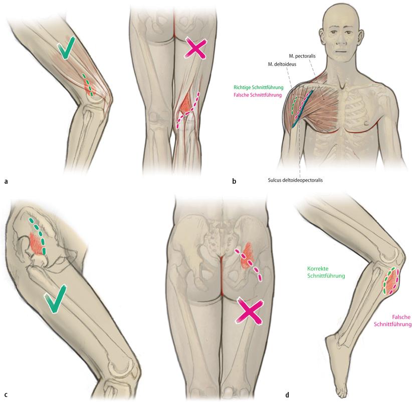 Offene Biopsie von Knochen- und Weichteiltumoren | SpringerLink