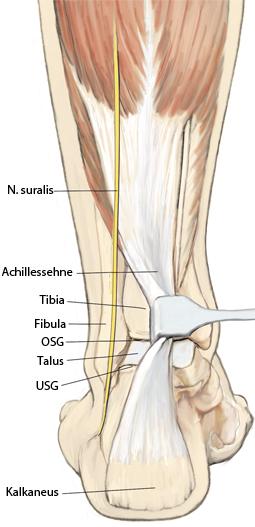 Arthrodese (mit/ohne Korrektur) des oberen und unteren Sprunggelenks ...