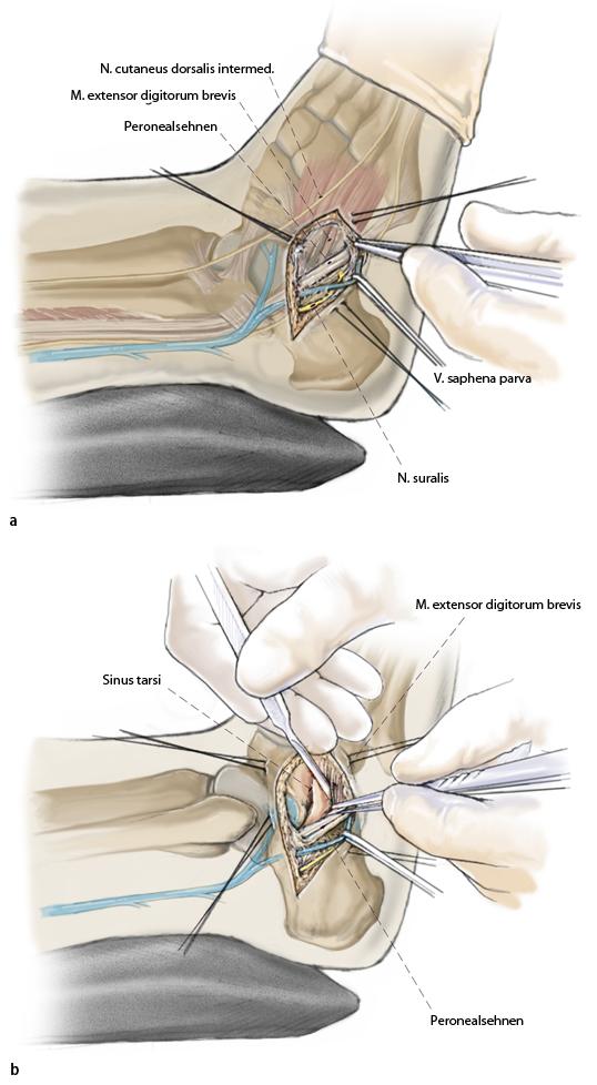 Frakturen des Processus anterior calcanei | SpringerLink