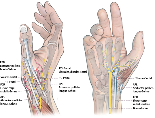 Die Arthroskopie des Daumensattelgelenks | SpringerLink
