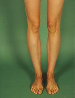 Die Torsionsosteotomie | SpringerLink