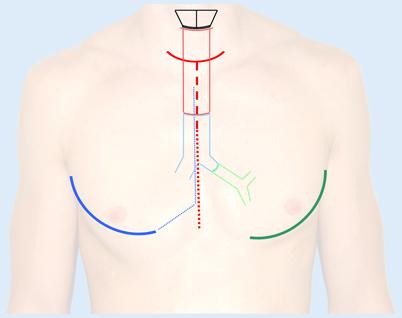 Chirurgie traumatischer trachealer und tracheobronchialer ...
