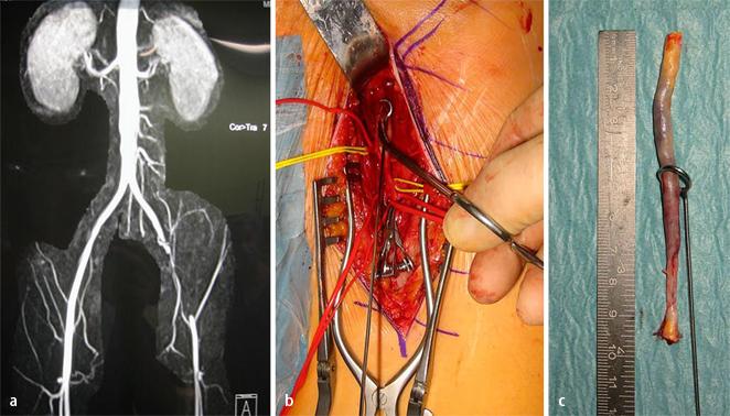 Verschlüsse der Aorta und der Beckenarterien | SpringerLink