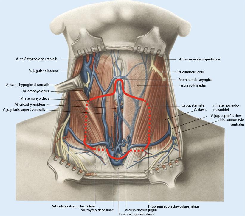 Totale Thyreoidektomie mit Lymphknotendissektion des zentralen ...