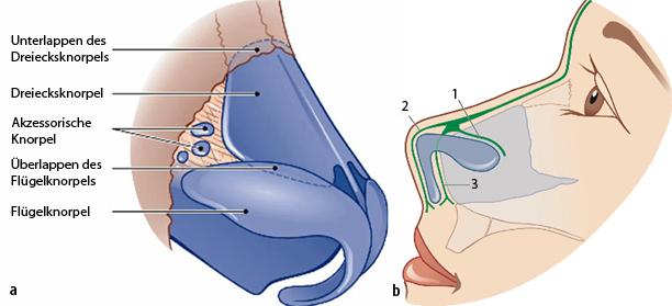 Techniken der Nasenrückenkorrektur | SpringerLink