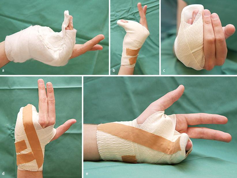 Frakturen des Handgelenks und der Hand   SpringerLink