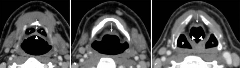 Radiologische Normalanatomie des Larynx und Pharynx sowie ...