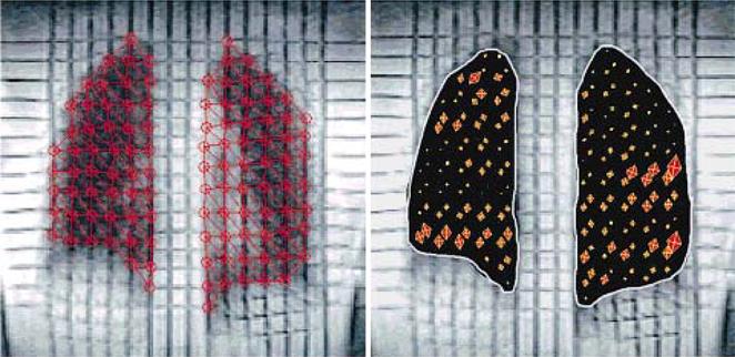 magnetresonanztomographie der atembewegung und. Black Bedroom Furniture Sets. Home Design Ideas