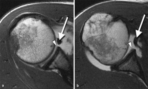 Magnetresonanztomographie der Schulter | SpringerLink