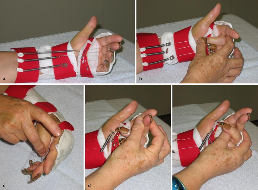 Kombinierte Beugesehnen- und Nervenverletzungen der Hand   SpringerLink