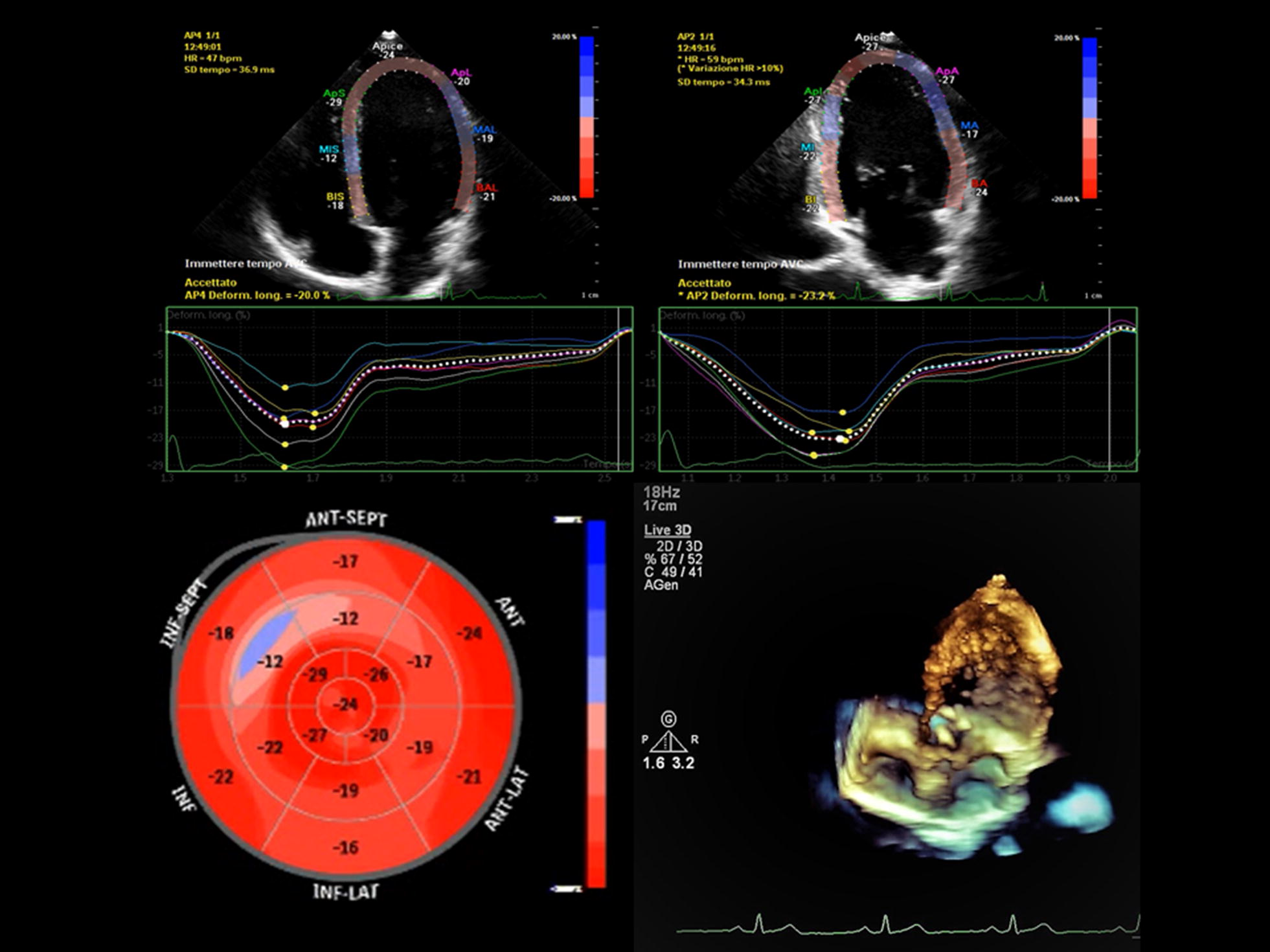 A decade of progress in critical care echocardiography: a