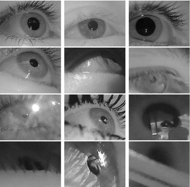 Pupil detection for head-mounted eye tracking in the wild