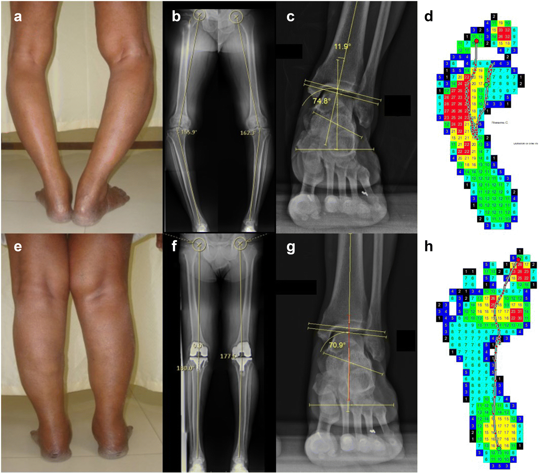 Foot loading pattern and hind foot alignment are corrected