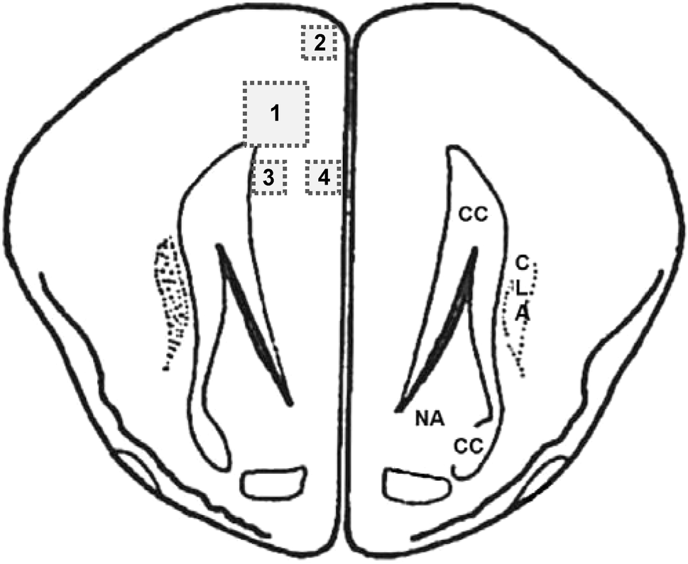 Low Intensity Repetitive Transcranial Magnetic Stimulation Over