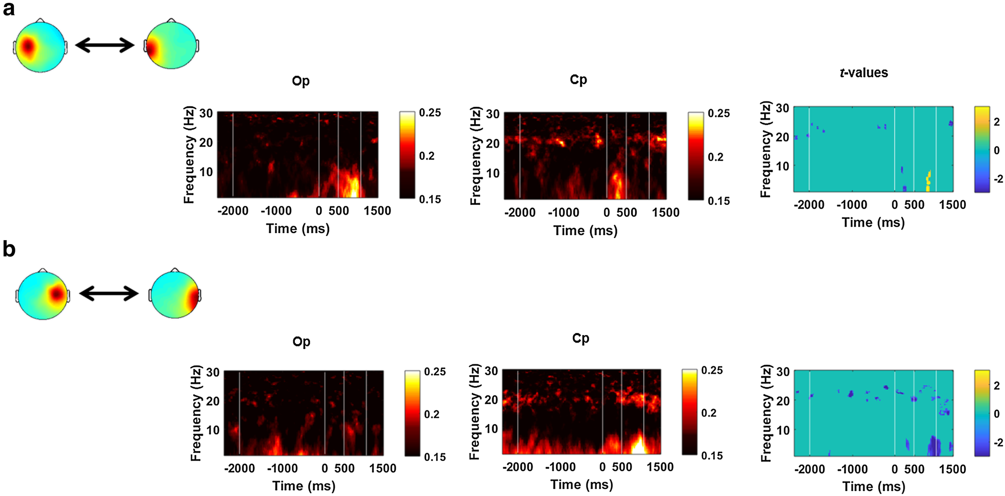 Power and phase coherence in sensorimotor mu and temporal lobe alpha