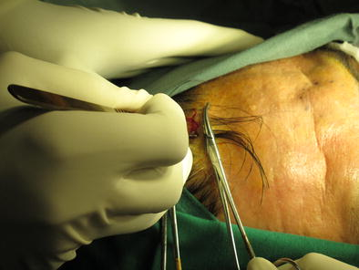 Forehead lipoma excision: a comparative study of open versus
