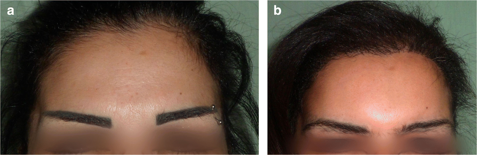 Dermal subcision of Nemoto's ligaments as a long-lasting