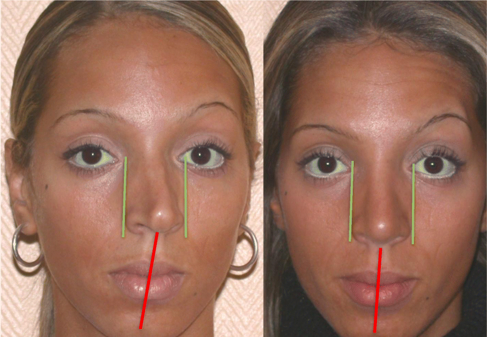 Rhinoplasty in the deviated nose: patterns of recurrence and