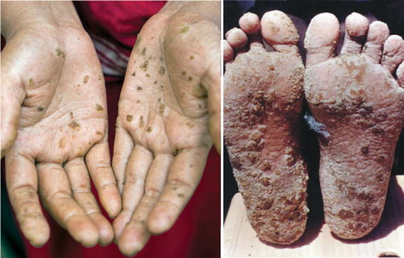 The Arsenic Contamination of D...