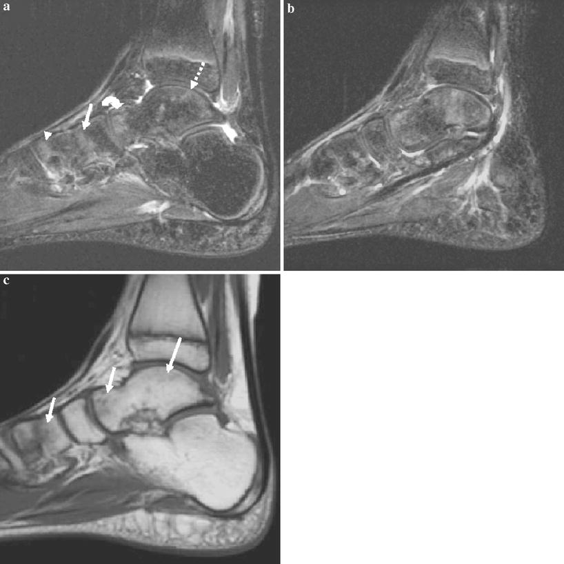 High Signal T2 Changes Of The Bone Marrow Of The Foot And Ankle In