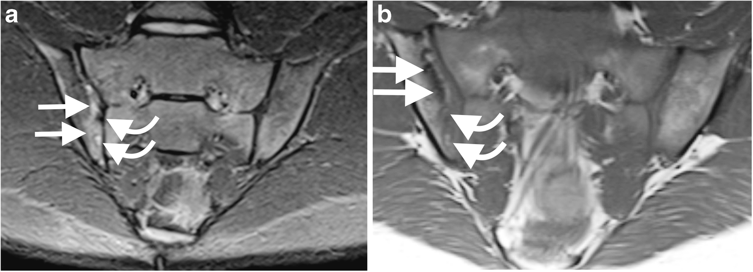 Magnetic Resonance Imaging Of Sacroiliitis In Children