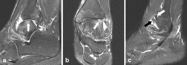Mri Appearance Of Surgically Proven Abnormal Accessory