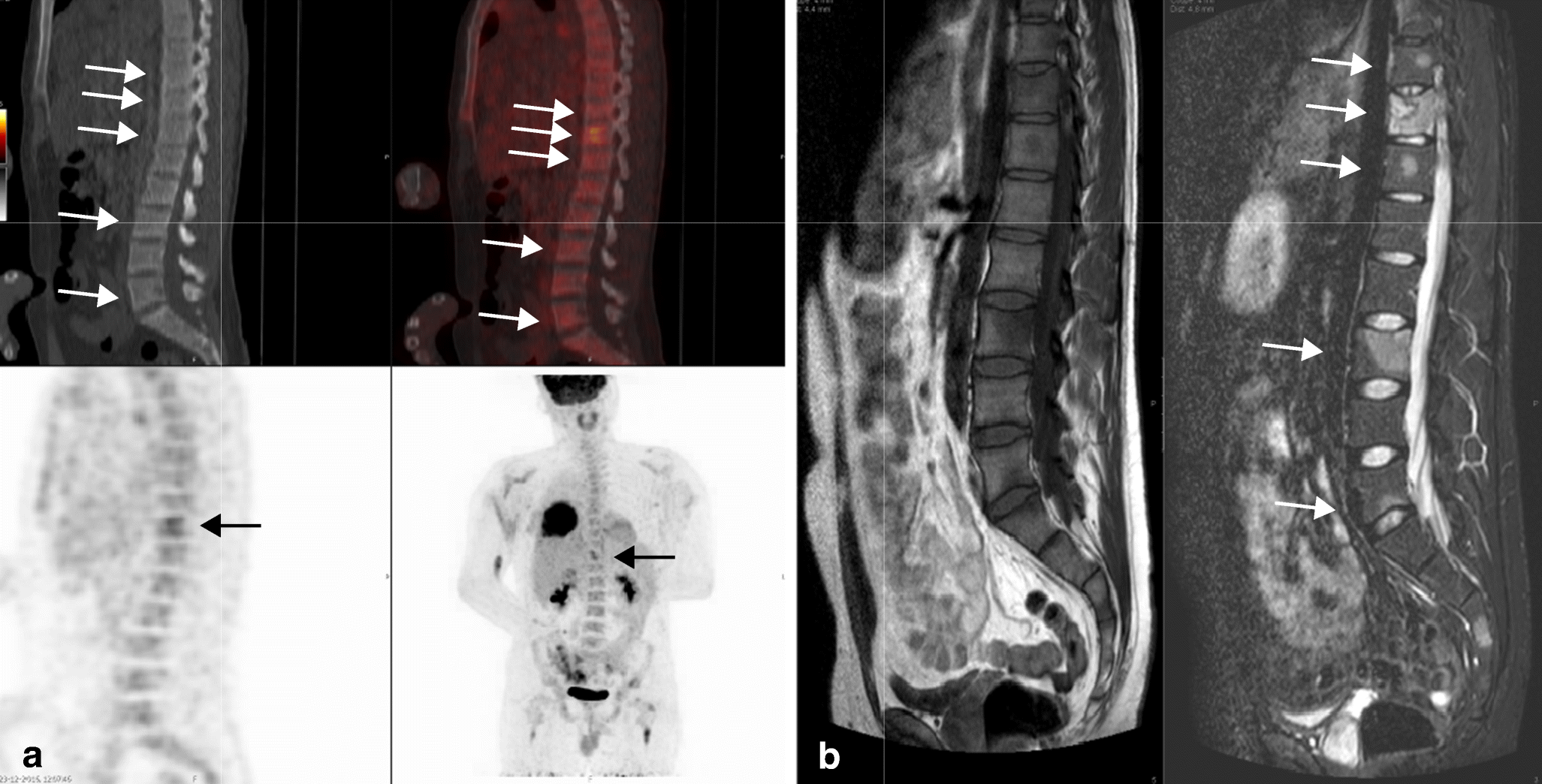 18F-FDG PET-CT versus MRI for detection of skeletal