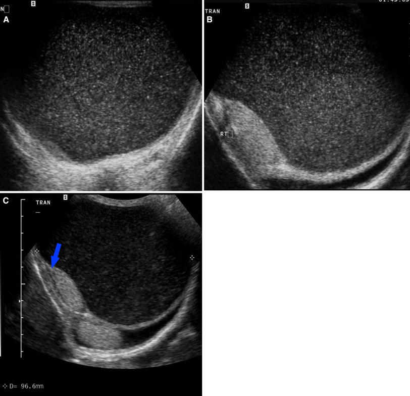 Spermatocele radiology