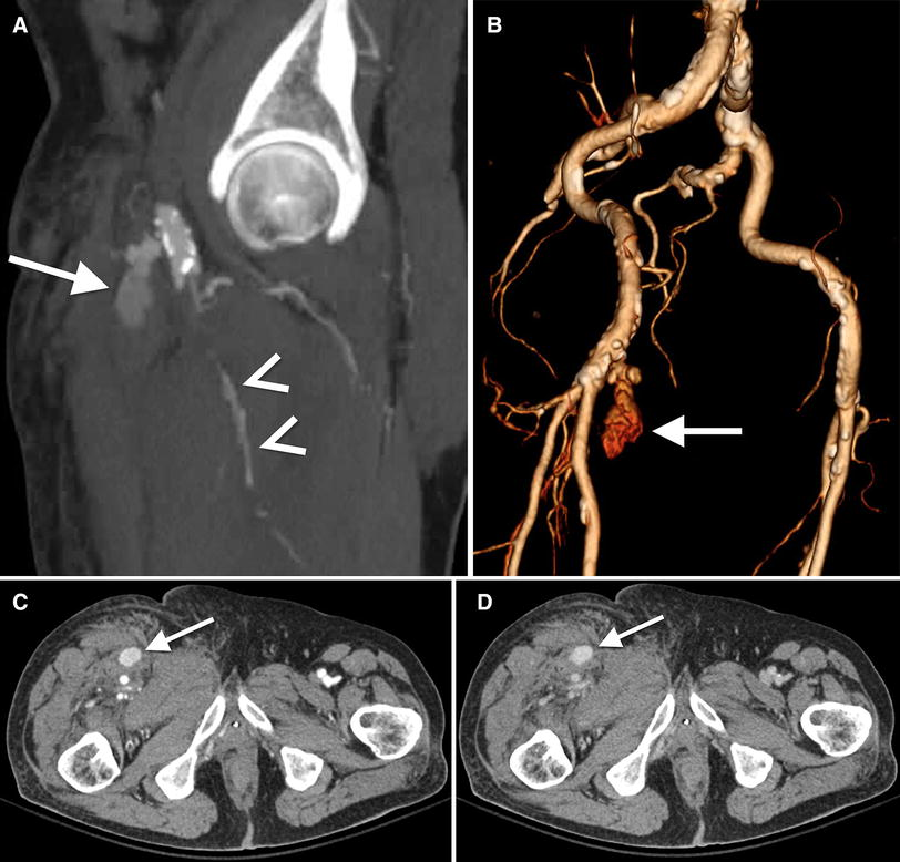 Role of lower extremity run-off CT angiography in the evaluation of ...