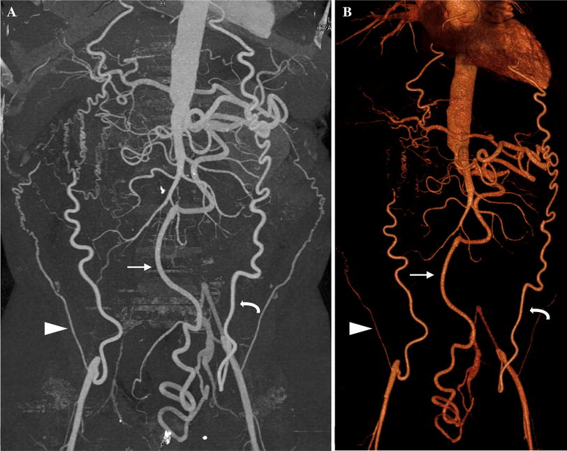 Ct Angiography And 3d Imaging In Aortoiliac Occlusive Disease