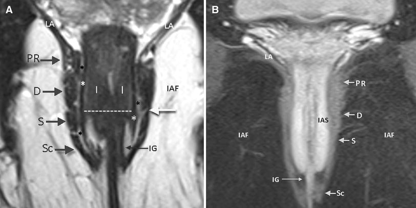 Mri Of Anal Canal Normal Anatomy Imaging Protocol And Perianal