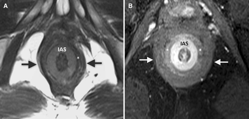 MRI of anal canal: normal anatomy, imaging protocol, and perianal ...