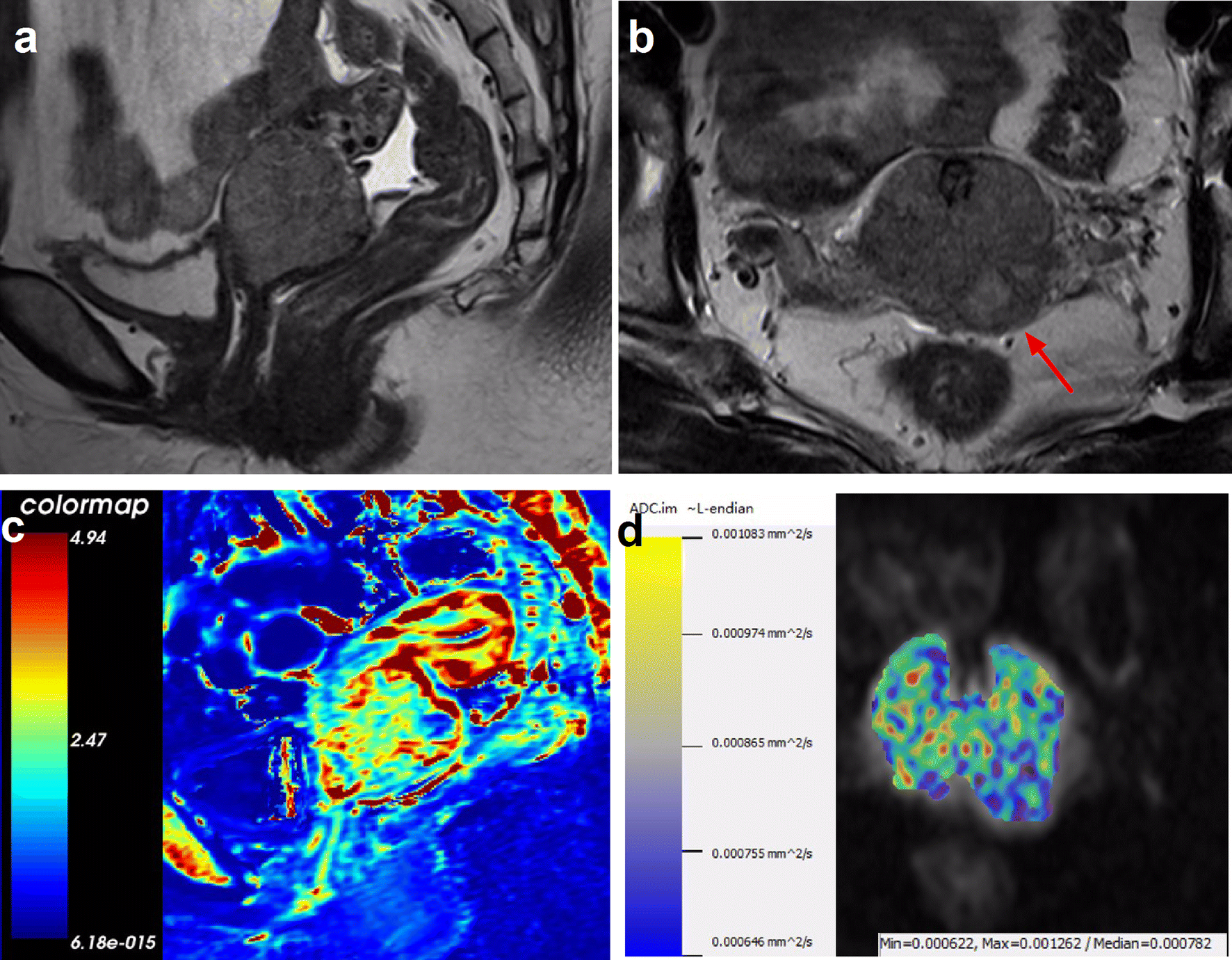 Value of diffusion-weighted and dynamic contrast-enhanced MR in