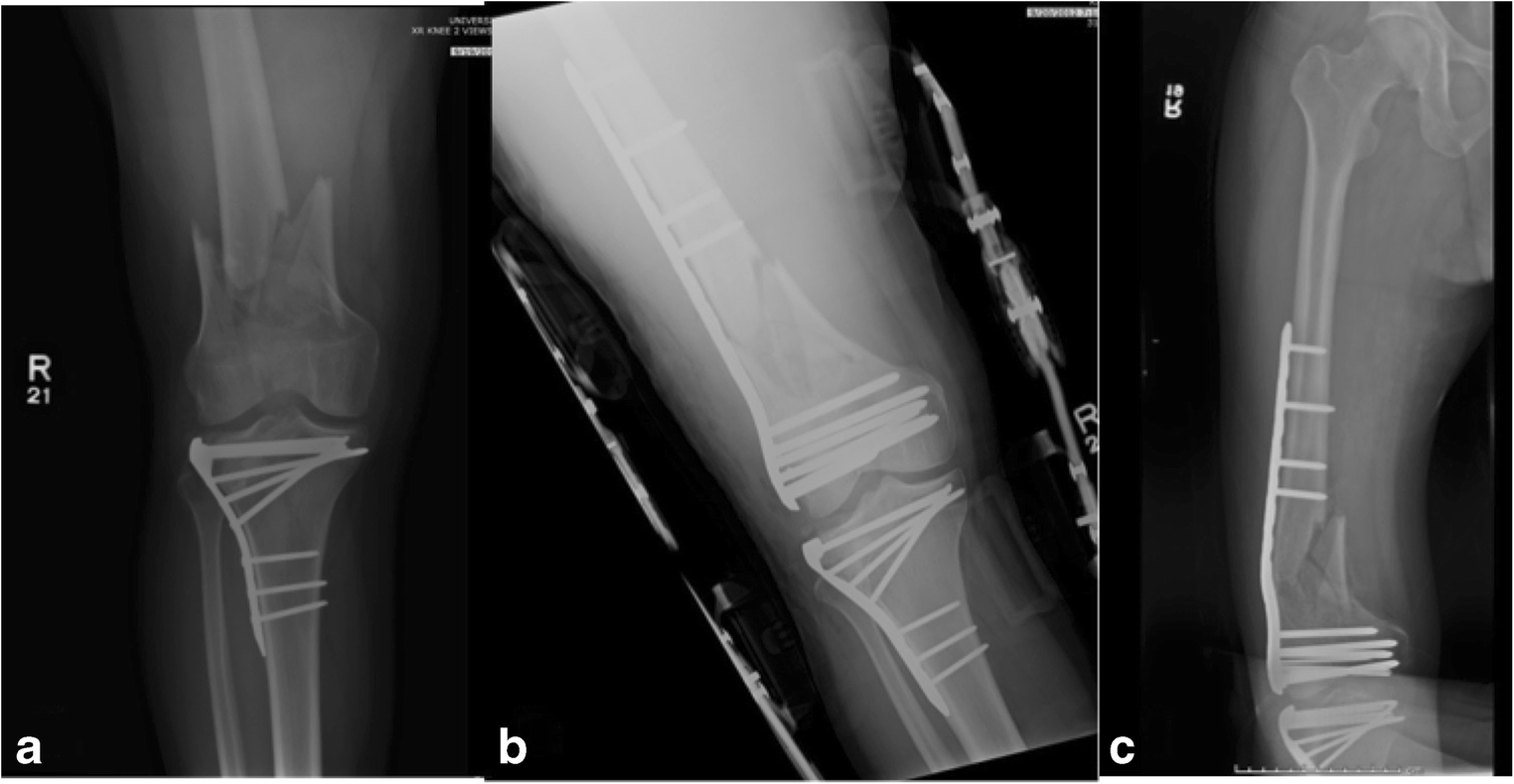 Outcomes of distal femur fractures treated with the Synthes