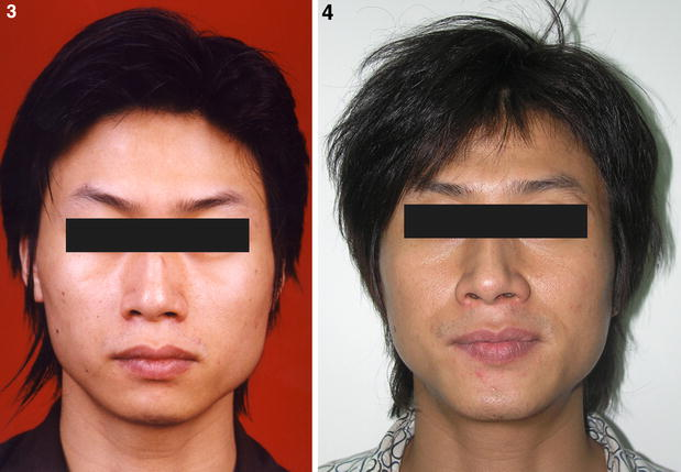 Genioplasty and Chin Augmentation with Medpore Implants: A Report of