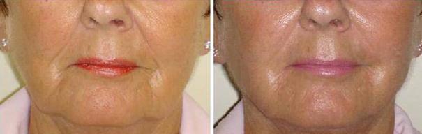 Fat Reduction Using Phosphatidylcholine/Sodium Deoxycholate