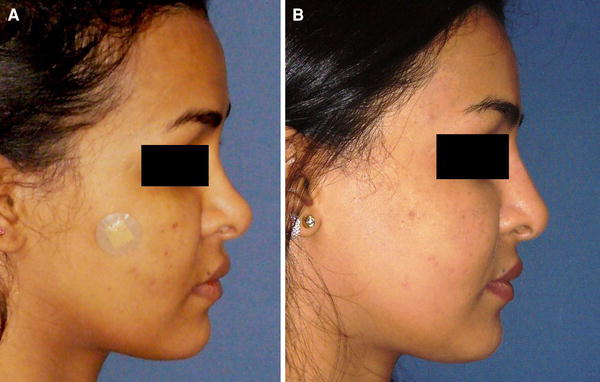 Injectable Calcium Hydroxylapatite for Correction of Nasal