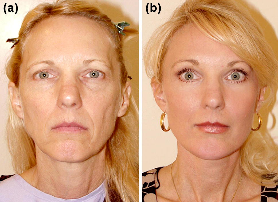 Facial Fat Grafting: Why, Where, How, and How Much