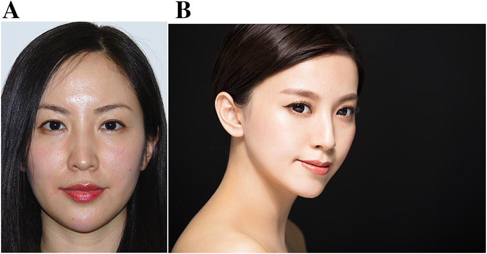 Ideals of Facial Beauty Amongst the Chinese Population